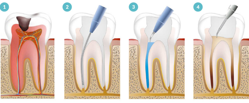 endoconcia-mecanizada-clinica-dental-sevilla-2
