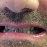 implantes-dentales-clinica-dental-sevilla-01