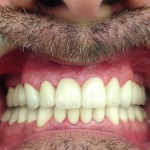 trabajos-diferentes-de-estetica-dental-2015-091