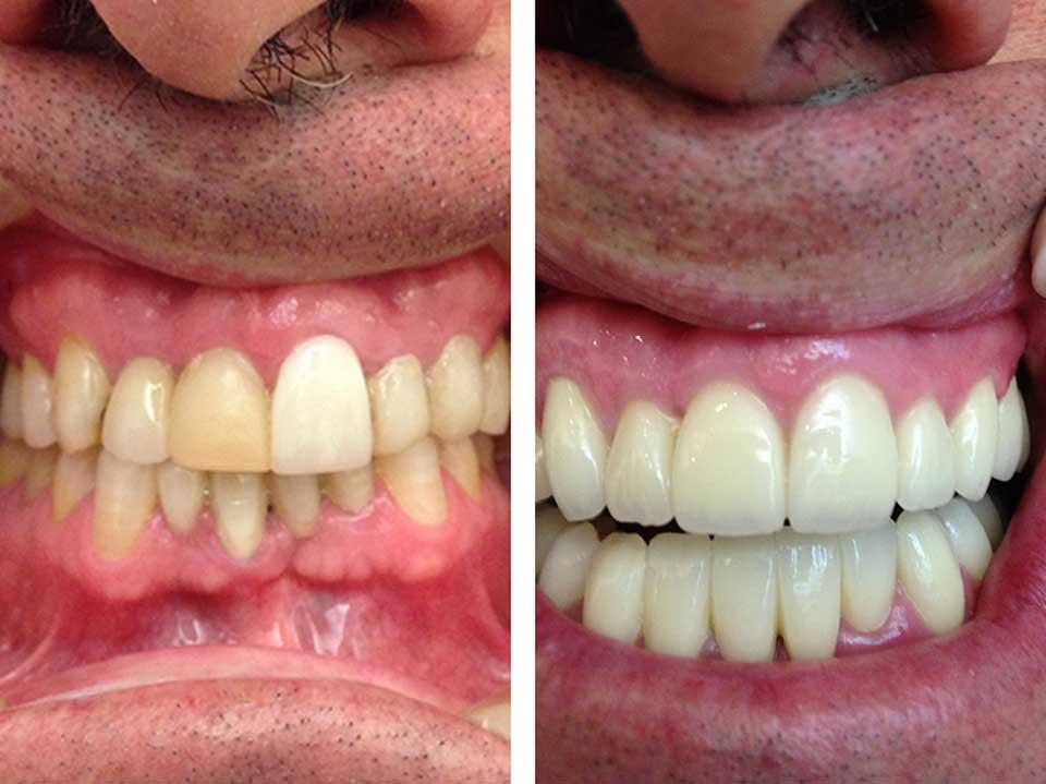 antes-y-despues-clinica-dental-sevilla_3