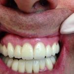 estetica-dental-008