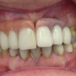 antes-despues-clinica-dental-sevilla-57