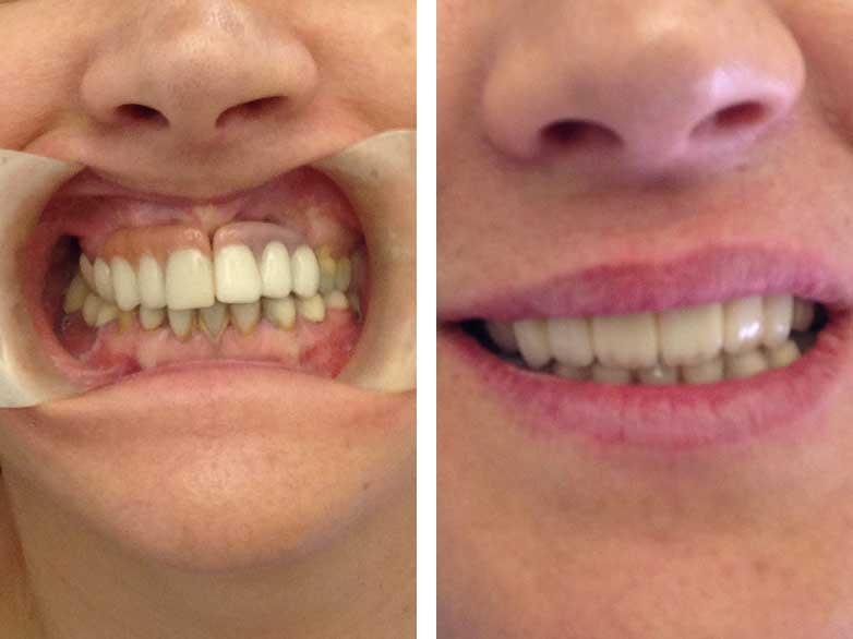 antes-y-despues-clinica-dental-sevilla