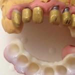 estetica-dental-041