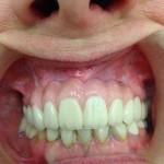 estetica-dental-048